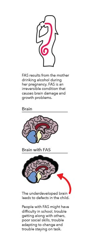 A sidebar about FAS and how it affects the brain.